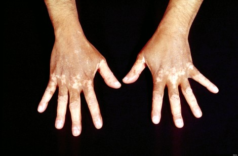 Contact dermatitis exposure to hydroquinone, a popular component used in skin bleach products
