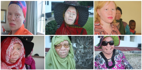Top row: (l to r) Grace Medaldi, Janet Anatoli, Judicka Lyamboko Bottom row: Shamira, Zaidai Nsembo, Zakkiyah Matimbwa. Albino women from Tanzania. Photos taken in October 2013 in Dar es Salaam and Moshi, Tanzania by Chika Oduah